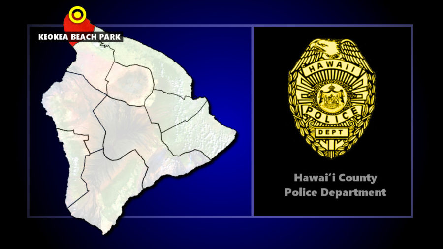 66-Year-Old Kapa'au Man Dies In Keokea Beach Road Crash
