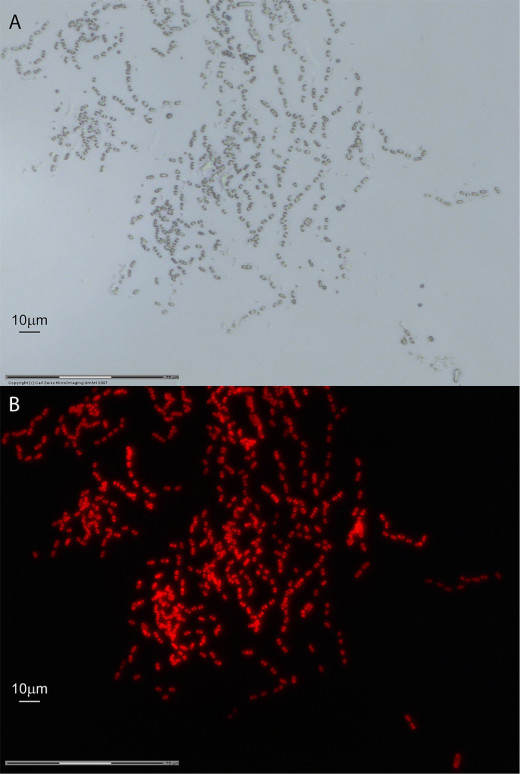 (from research article) Autofluorescent Gloeobacter kilaueensis JS1T cells observed under bright field (A) and fluorescent microscopy (B). Both fields recorded through a 63× objective with oil immersion on a Zeiss PALM Laser Capture Microdissection MicroBeam IV system. Dividing cells are visible. Scale bar = 10 µm.